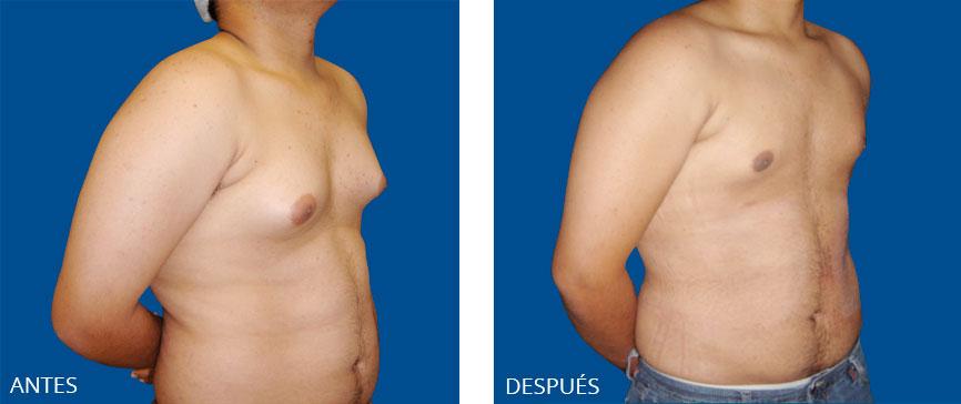fotos liposuccion cara interna muslos