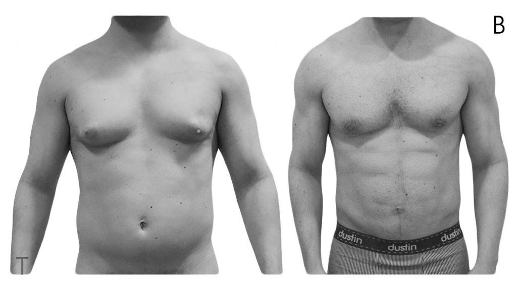 fotos liposuccion abdominal