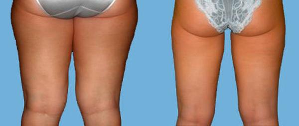 liposuccion muslos precio