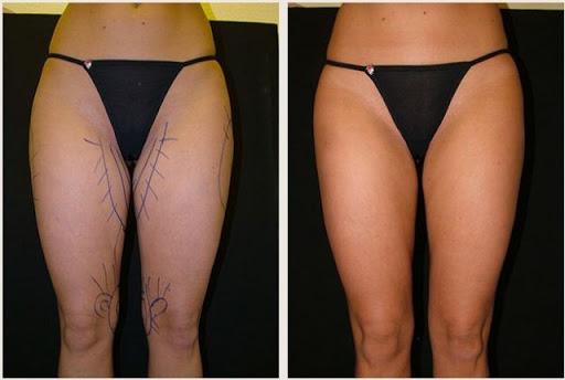 liposuccion muslos internos