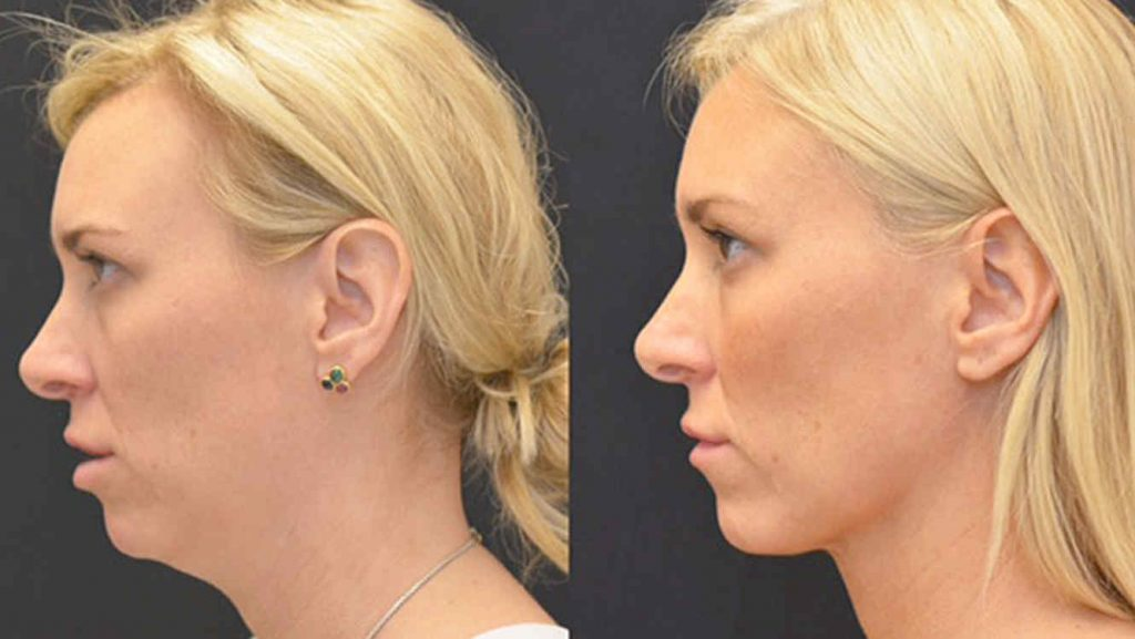 liposuccion facial precio