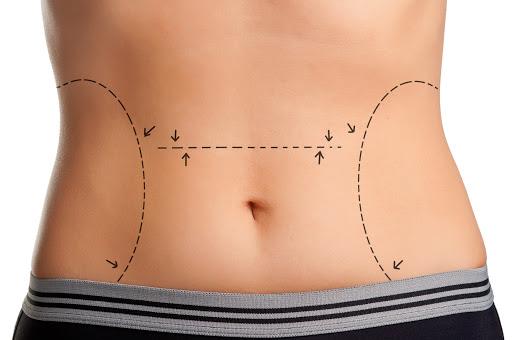 liposuccion abdominal beneficios