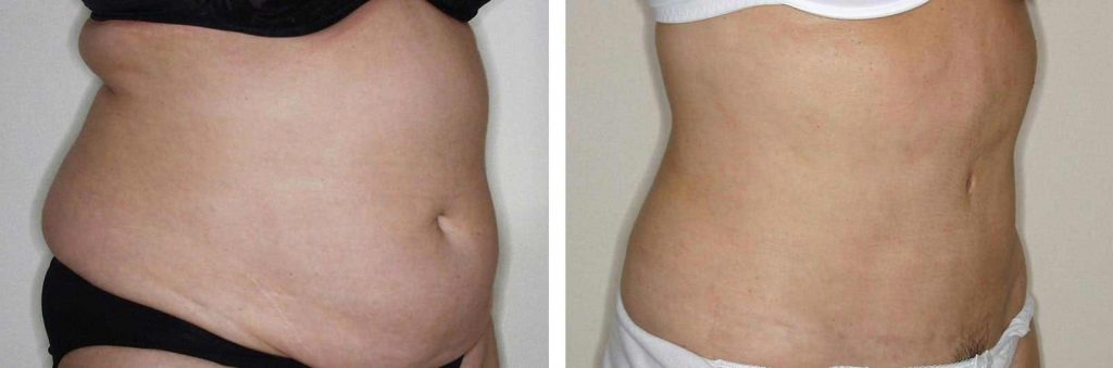 liposuccion en barriga