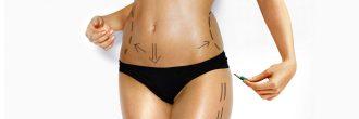 Tipos de liposuccion