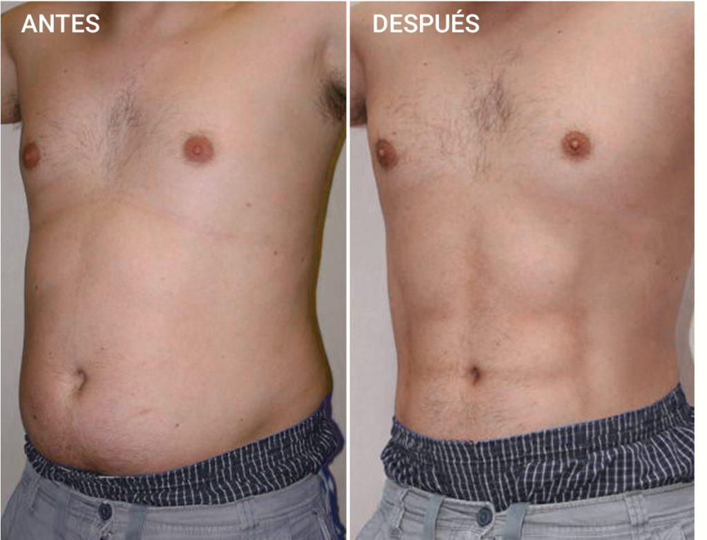 liposuccion abdomen hombres