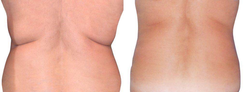 cicatriz liposuccion abdominal