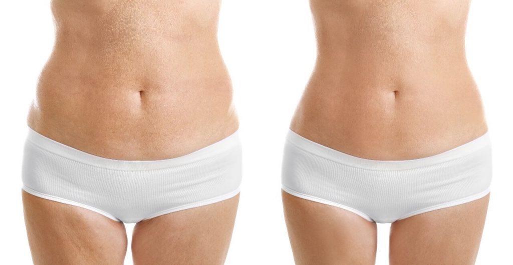 liposuccion antes y despues abdomen
