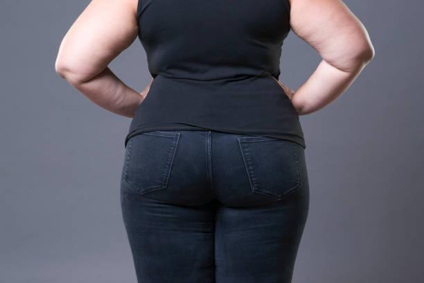 cuantos kilos se pierden despues de una liposuccion