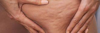 Cuantos kilos se pierden en una Liposuccion