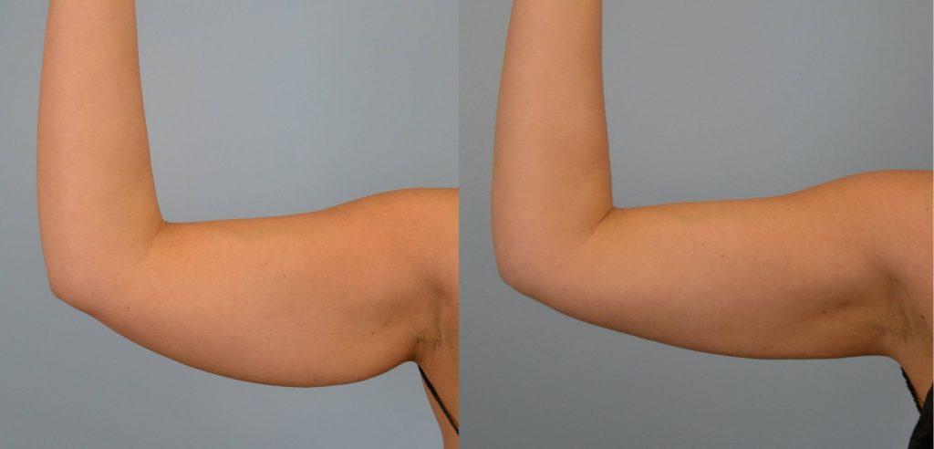 liposuccion de brazos recuperacion