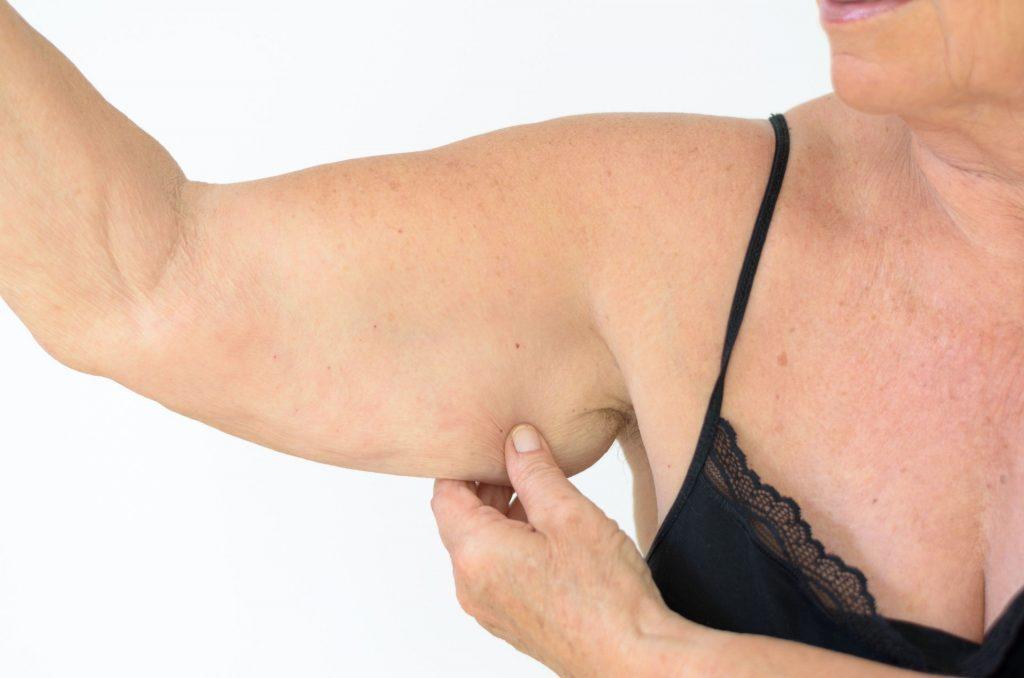 liposuccion brazos fotos