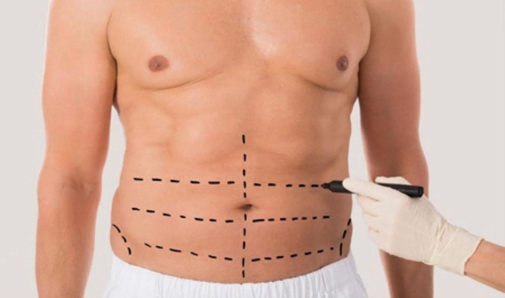 liposuccion abdominal hombres