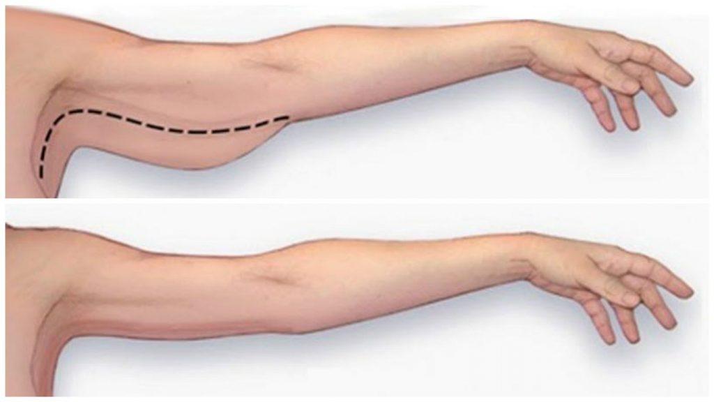 liposuccion piernas alicante