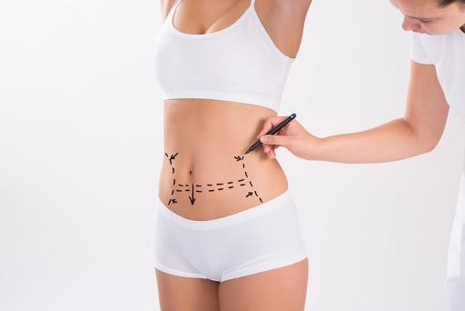 liposuccion sin cirugia bilbao