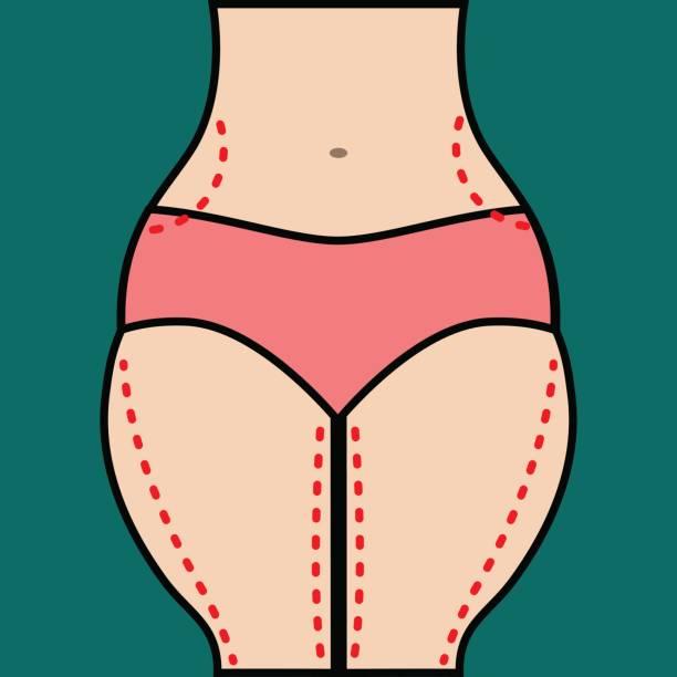 liposuccion caderas