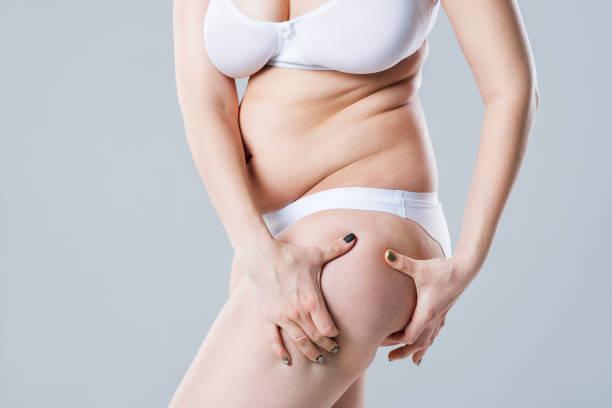 liposuccion de caderas