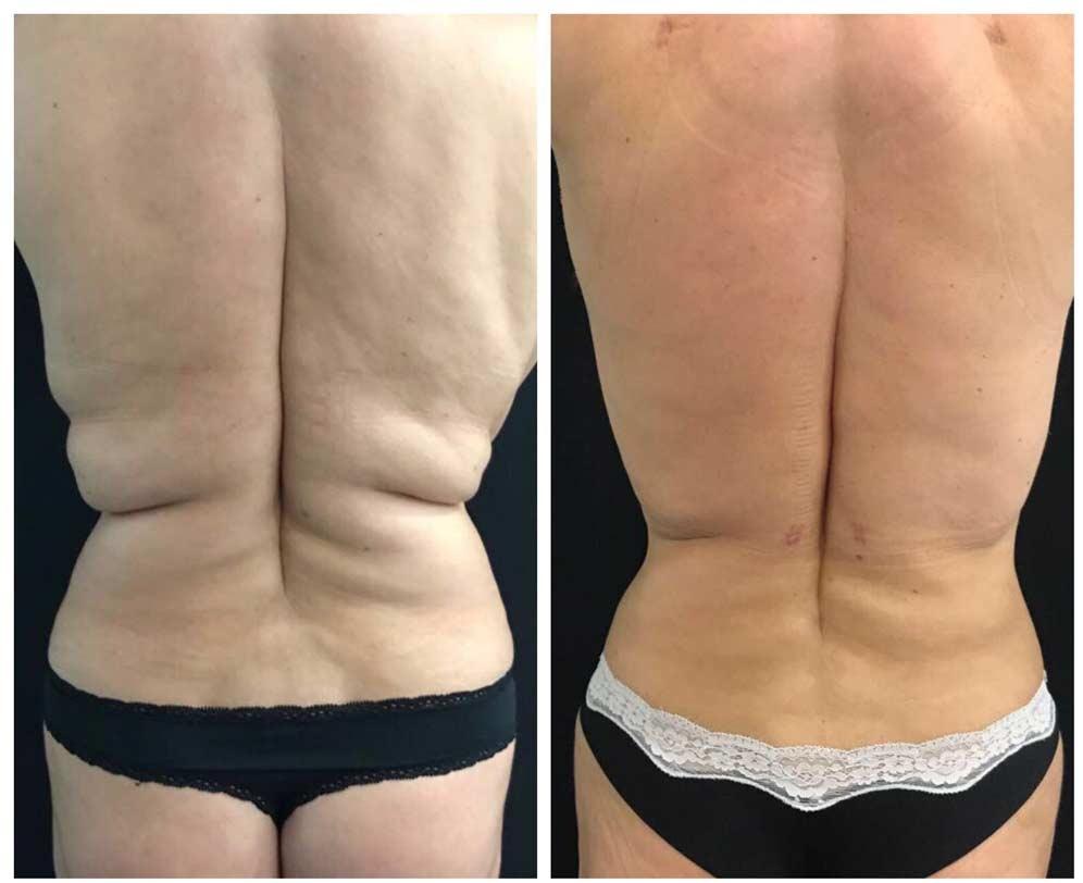 liposuccion espalda y flancos