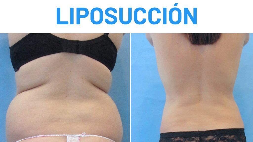 liposuccion abdomen experiencias
