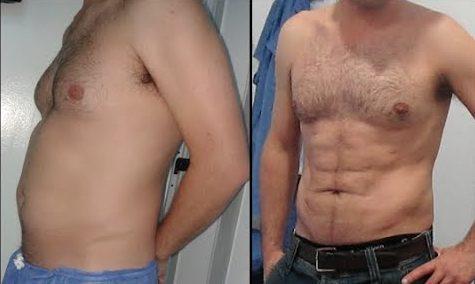 liposuccion antes y despues hombres