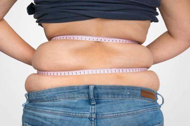 liposuccion grasa dorsocervical