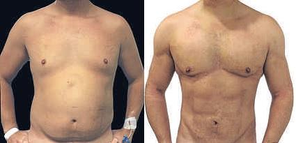 opiniones liposuccion sin cirugia