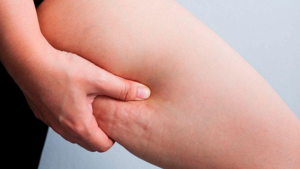 liposuccion de piernas precio