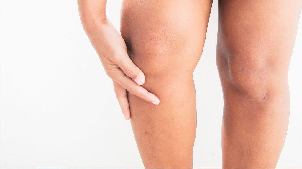 liposuccion piernas recuperacion