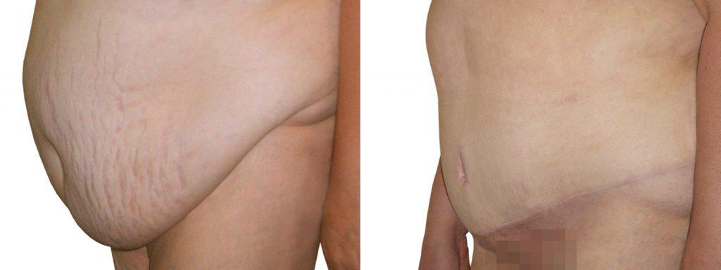 liposuccion y abdominoplastia es lo mismo