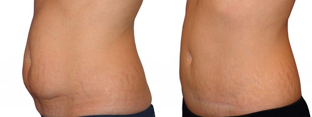 liposuccion y abdominoplastia al mismo tiempo