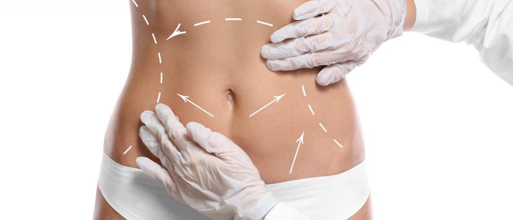 diferencia entre lipoescultura liposuccion y abdominoplastia