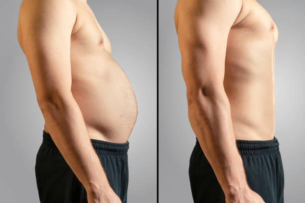mini liposuccion recuperacion