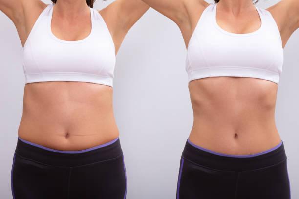 mini liposuccion du ventre
